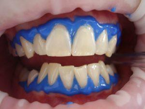 tratamiento blanqueamiento dental