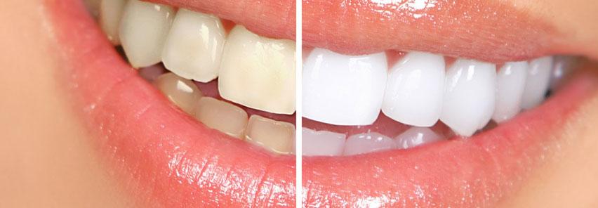 http://www.clinicamartinezwallin.es/sobre-el-blanqueamiento-dental-antes-y-despues
