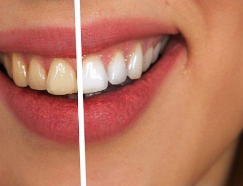 ¿Qué debo saber sobre blanqueamiento dental?