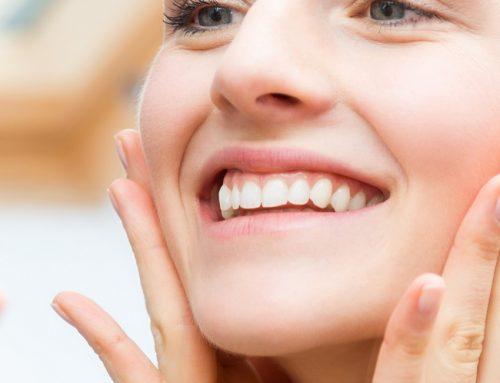 Blanqueamiento dental de calidad en Clínica Martínez Wallin