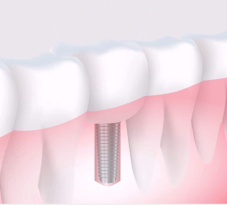 Boca en equilibrio mediante implantes